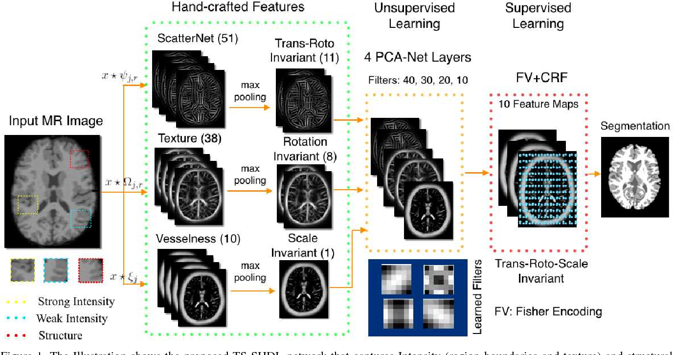 Figure 1 for Texture and Structure Incorporated ScatterNet Hybrid Deep Learning Network (TS-SHDL) For Brain Matter Segmentation