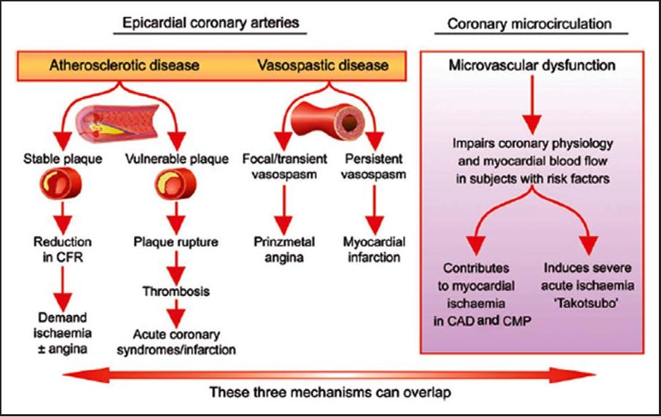 Figure 2 From Pathophysiology Of Takotsubo Syndrome Semantic Scholar