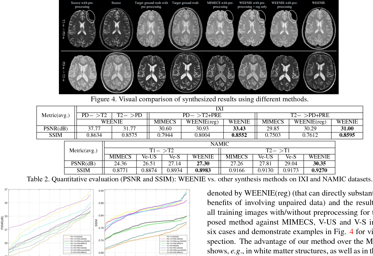 Figure 4 for Simultaneous Super-Resolution and Cross-Modality Synthesis of 3D Medical Images using Weakly-Supervised Joint Convolutional Sparse Coding