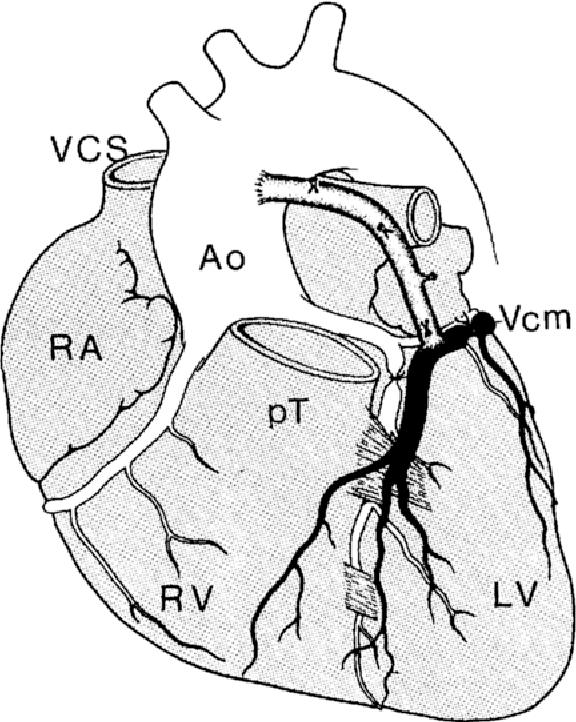 Figure 1 From Clinical Anatomy Of Cardiac Veins Vv Cardiacae