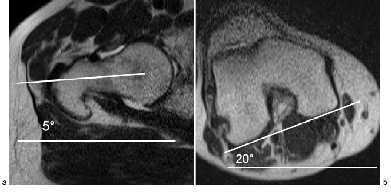 Figure 9 From Postoperative Imaging After Impingement Surgery