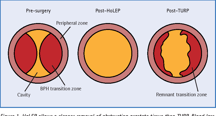 HoLEP: the new 'gold standard' in bladder outflow surgery