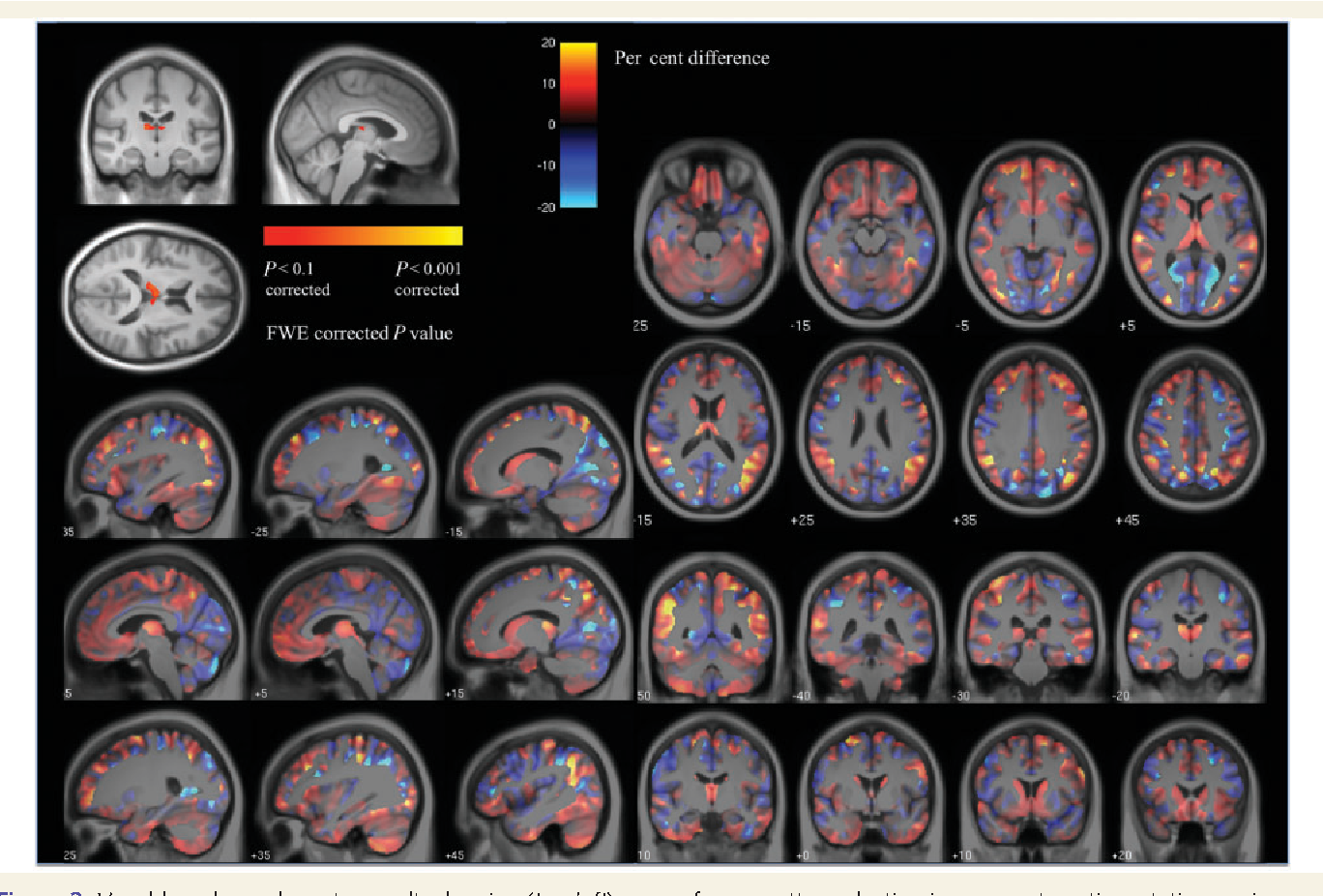 Figure 3 from Magnetic resonance imaging evidence for