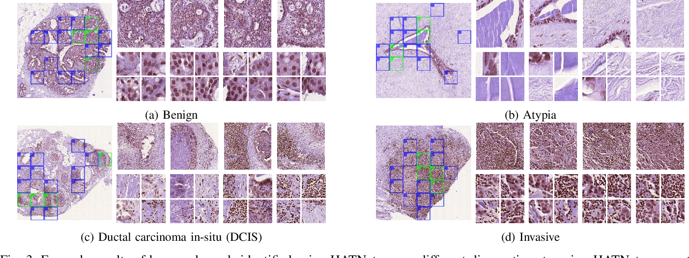 Figure 3 for HATNet: An End-to-End Holistic Attention Network for Diagnosis of Breast Biopsy Images