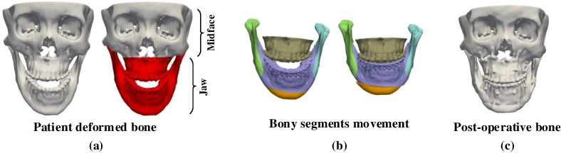 Figure 1 for A Self-Supervised Deep Framework for Reference Bony Shape Estimation in Orthognathic Surgical Planning