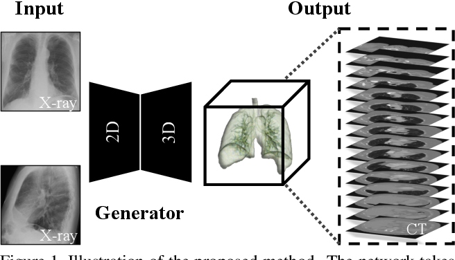 Figure 1 for X2CT-GAN: Reconstructing CT from Biplanar X-Rays with Generative Adversarial Networks