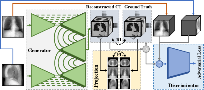 Figure 3 for X2CT-GAN: Reconstructing CT from Biplanar X-Rays with Generative Adversarial Networks