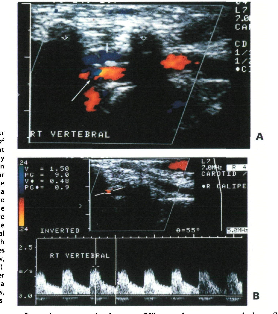 Figure 10 From Ultrasound Of The Carotid And Vertebral Arteries