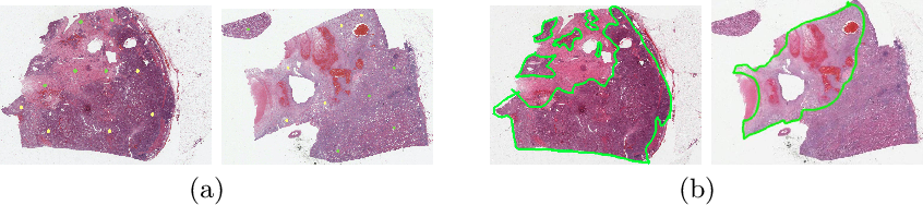 Figure 1 for Renal Cell Carcinoma Detection and Subtyping with Minimal Point-Based Annotation in Whole-Slide Images