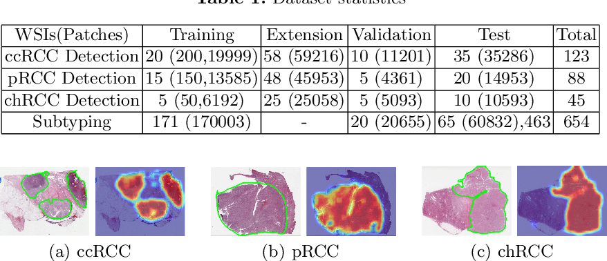 Figure 2 for Renal Cell Carcinoma Detection and Subtyping with Minimal Point-Based Annotation in Whole-Slide Images