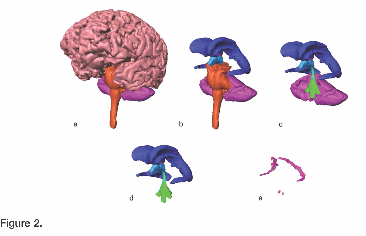 Virtual Cerebral Ventricular System An Mr Based Three Dimensional