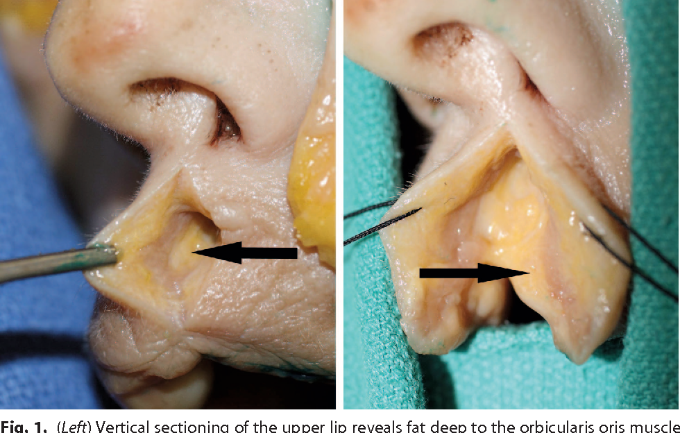 The anatomy and clinical implications of perioral submuscular fat ...