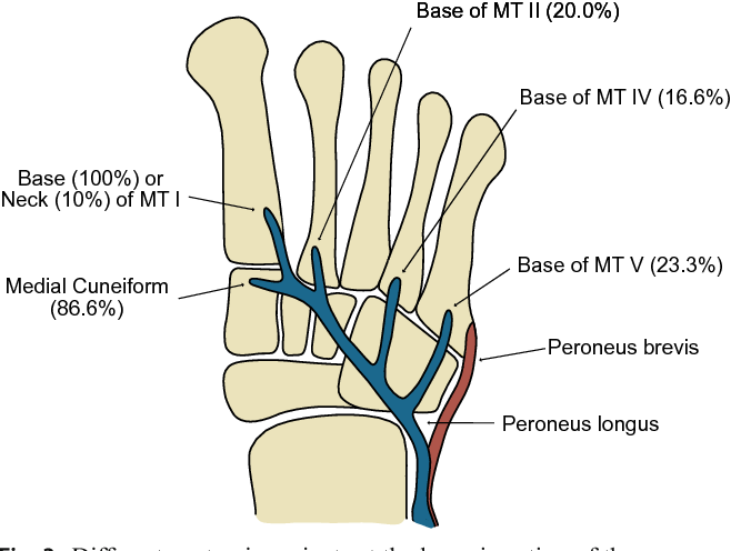 Isolated Avulsion Fracture Of The First Metatarsal Base At The