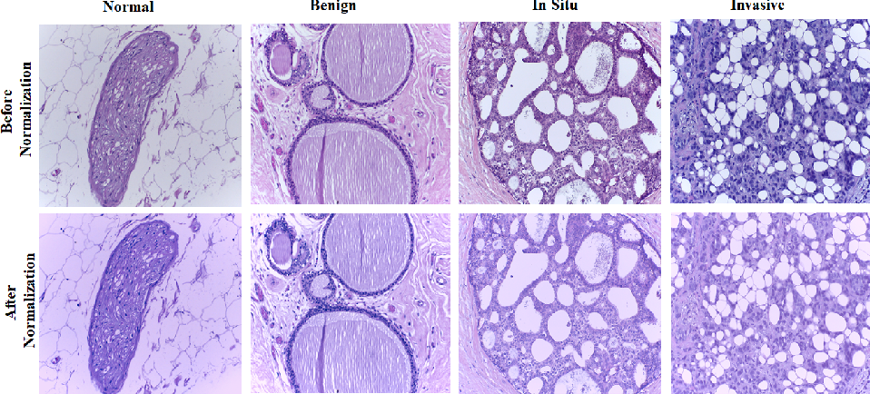 Figure 1 for Classification of breast cancer histology images using transfer learning