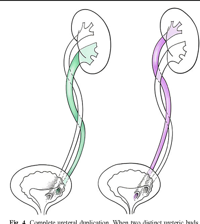The Duplicated Collecting System Of The Urinary Tract Embryology