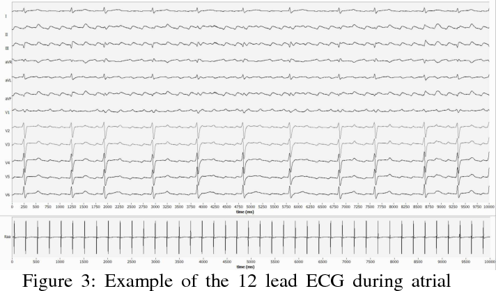 Figure 3 from Determination of atrial fibrillation frequency