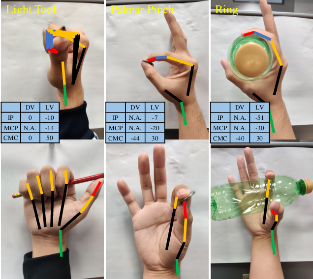 Figure 2 for Towards Complex and Continuous Manipulation: A Gesture Based Anthropomorphic Robotic Hand Design