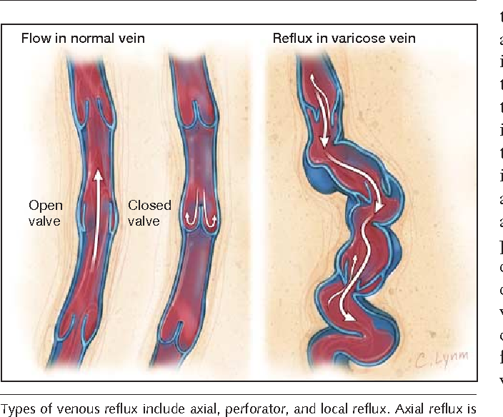 Management Of Varicose Veins And Venous Insufficiency Semantic