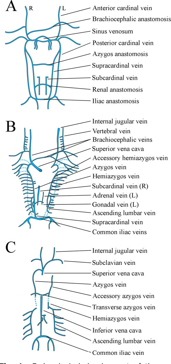 Venous drainage of the spine and spinal cord: a comprehensive review ...