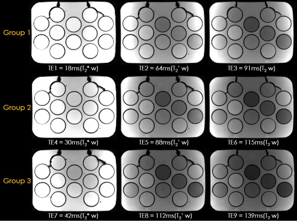 Figure 3 for BUDA-SAGE with self-supervised denoising enables fast, distortion-free, high-resolution T2, T2*, para- and dia-magnetic susceptibility mapping