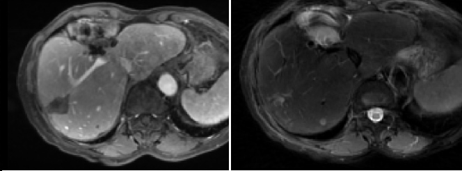 Figure 1 for Comparing Deep Learning strategies for paired but unregistered multimodal segmentation of the liver in T1 and T2-weighted MRI