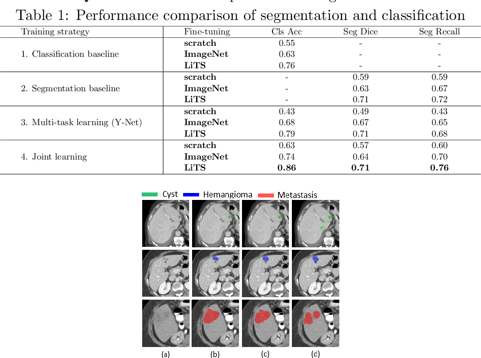 Figure 2 for Joint Liver Lesion Segmentation and Classification via Transfer Learning