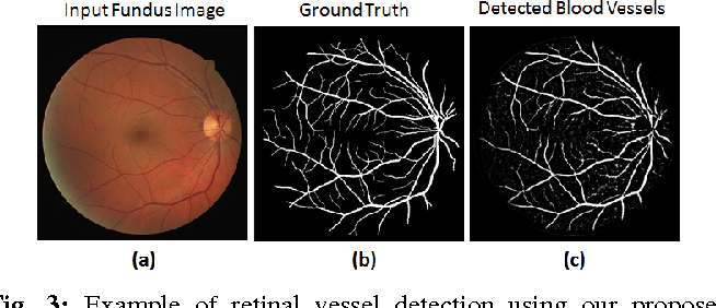 Figure 3 for Deep Neural Ensemble for Retinal Vessel Segmentation in Fundus Images towards Achieving Label-free Angiography