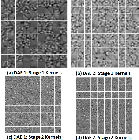 Figure 4 for Deep Neural Ensemble for Retinal Vessel Segmentation in Fundus Images towards Achieving Label-free Angiography