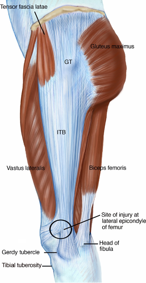 Iliotibial band syndrome: soft tissue and biomechanical factors in ...
