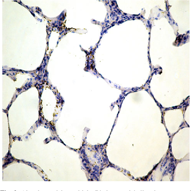 Fig. 2 Alveolar and interstitial pRb immunolabeling in unexposed sheep lung (940)