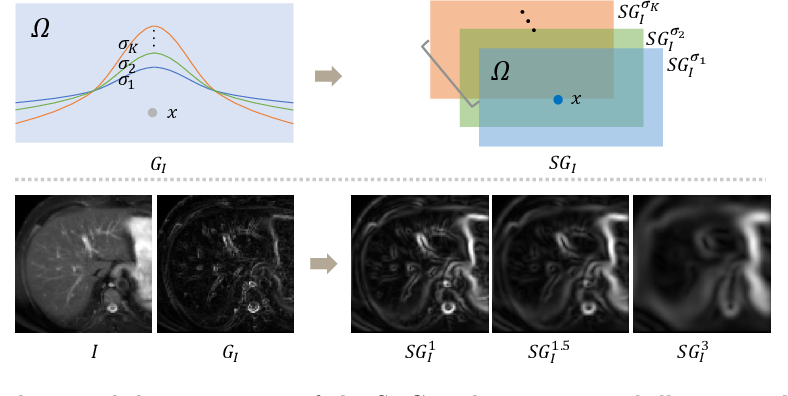 Figure 3 for Unsupervised MMRegNet based on Spatially Encoded Gradient Information