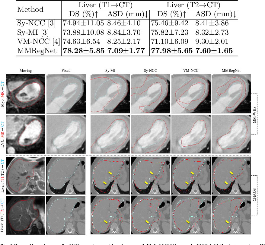 Figure 4 for Unsupervised MMRegNet based on Spatially Encoded Gradient Information