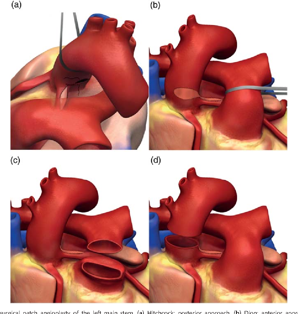Figure 1 from Surgical patch angioplasty of the left main coronary ...