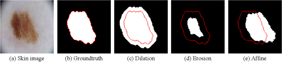 Figure 2 for Superpixel-guided Iterative Learning from Noisy Labels for Medical Image Segmentation