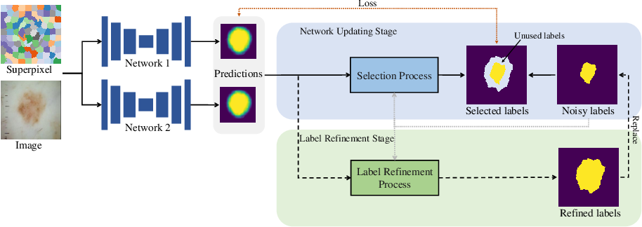 Figure 1 for Superpixel-guided Iterative Learning from Noisy Labels for Medical Image Segmentation