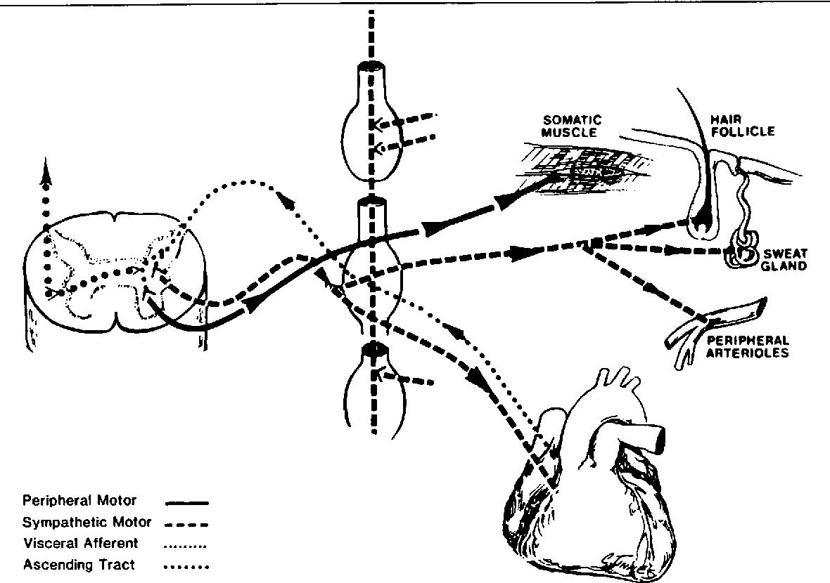 viscerosomatic reflex