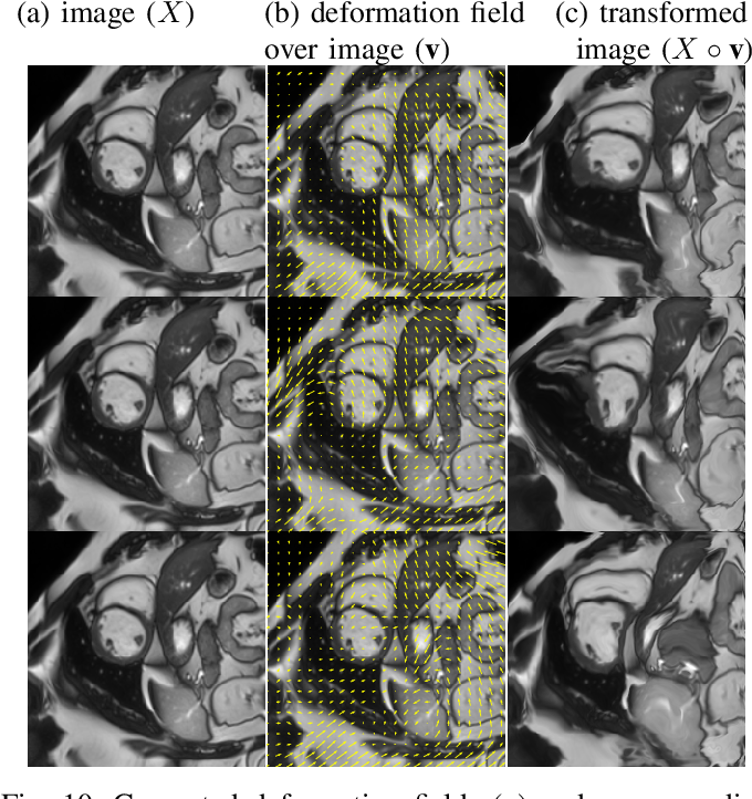 Figure 2 for Semi-supervised Task-driven Data Augmentation for Medical Image Segmentation