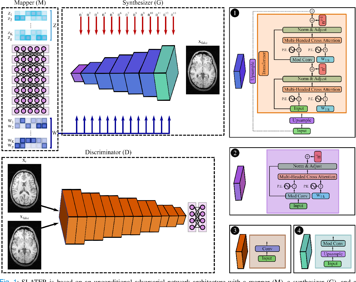 Figure 1 for Unsupervised MRI Reconstruction via Zero-Shot Learned Adversarial Transformers