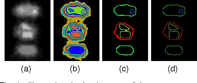Figure 1 for A novel automatic thresholding segmentation method with local adaptive thresholds