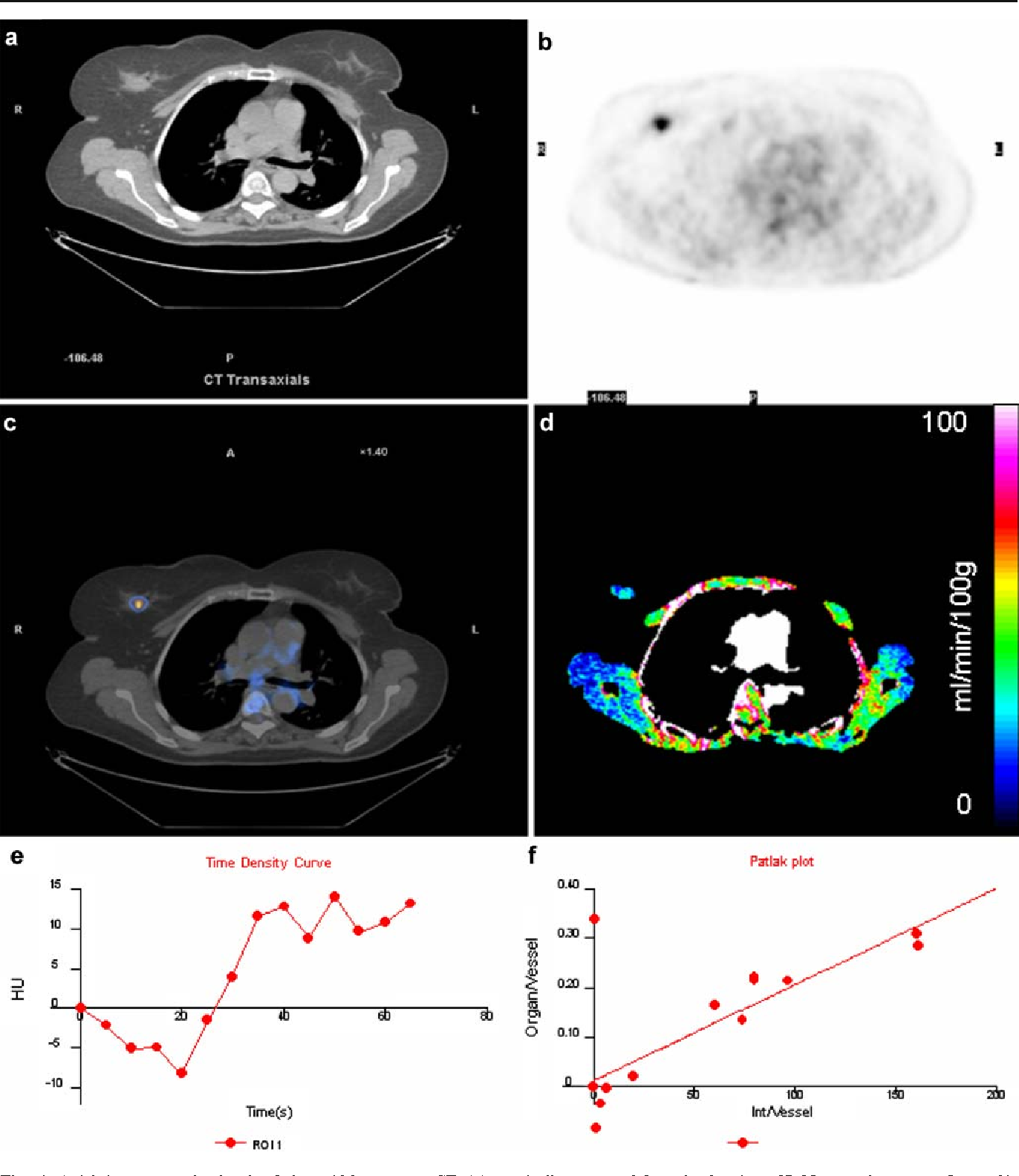 Fig. 1 Axial images at the level of the mid-breast, on CT (a), coregistered 18F-FDG PET (b) and fused PET/CT (c) show a 18FFDG-avid carcinoma in the right breast. Image d, derived from the DCE-CT shows the same tumour as part of a colour parametric perfusion map. Image e shows the time enhancement curve automat-