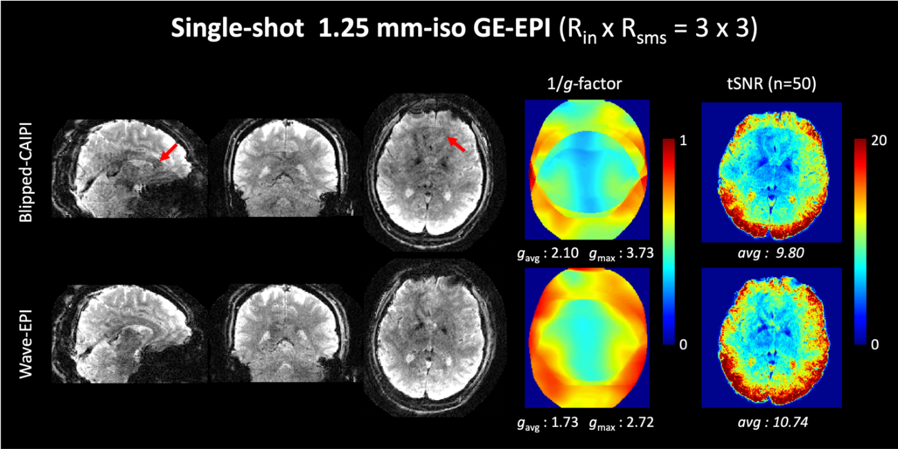Figure 3 for Highly Accelerated EPI with Wave Encoding and Multi-shot Simultaneous Multi-Slice Imaging