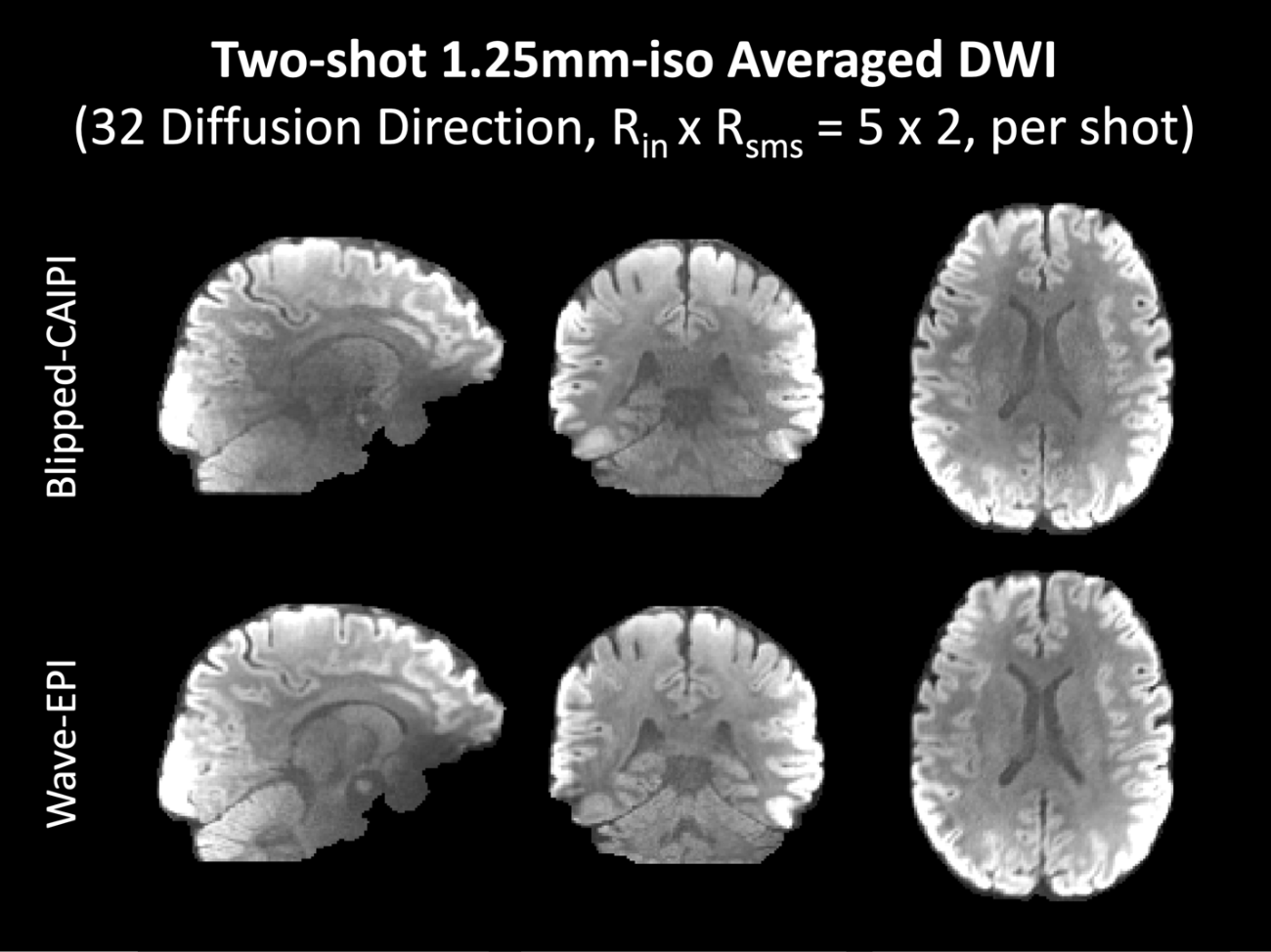 Figure 4 for Highly Accelerated EPI with Wave Encoding and Multi-shot Simultaneous Multi-Slice Imaging