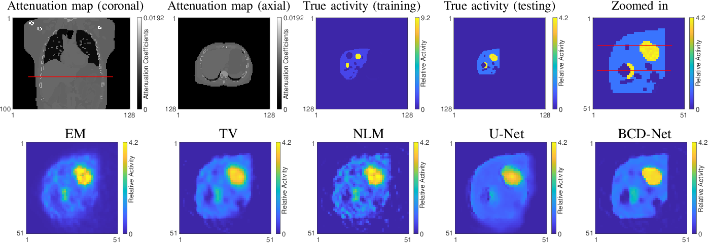 Figure 2 for Improved low-count quantitative PET reconstruction with a variational neural network