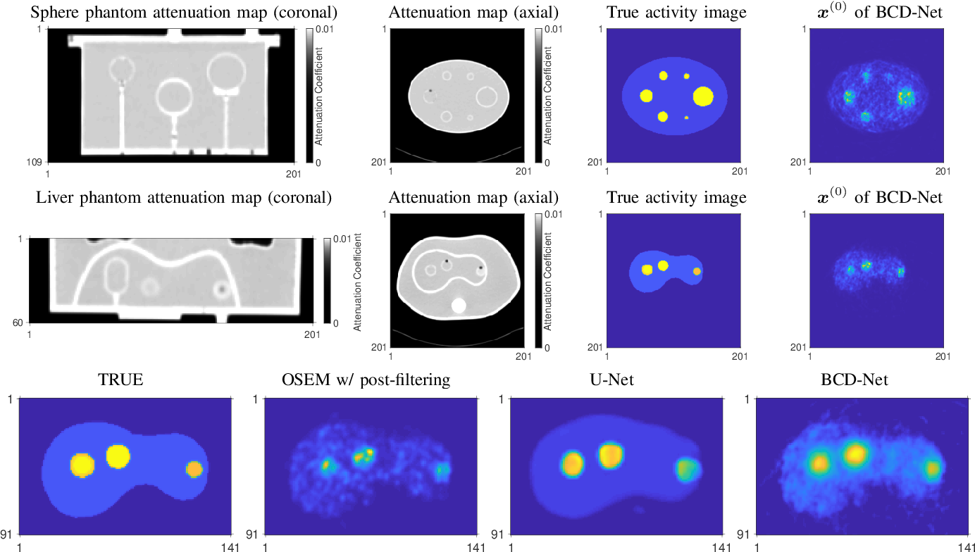 Figure 4 for Improved low-count quantitative PET reconstruction with a variational neural network