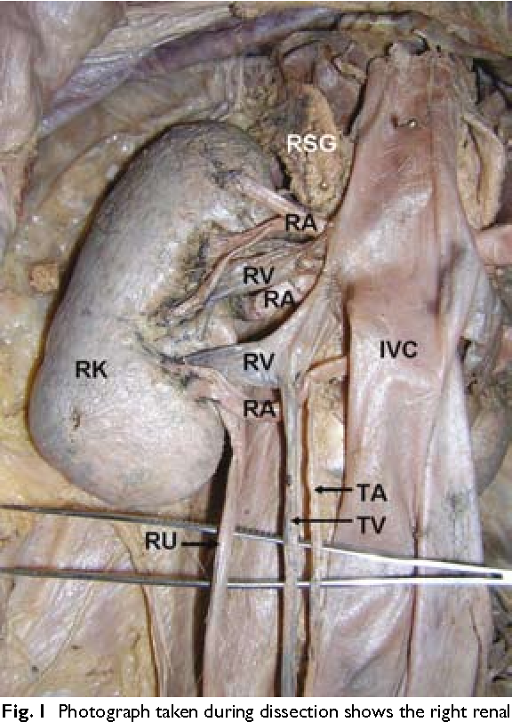 Figure 1 From Multiple Variations Of The Right Renal Vessels