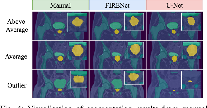 Figure 4 for Fabric Image Representation Encoding Networks for Large-scale 3D Medical Image Analysis