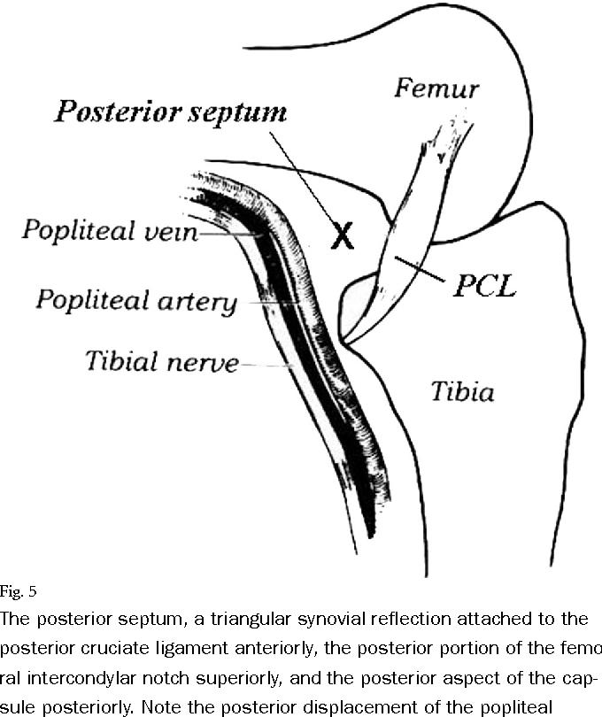 Posterior knee arthroscopy: anatomy, technique, application ...