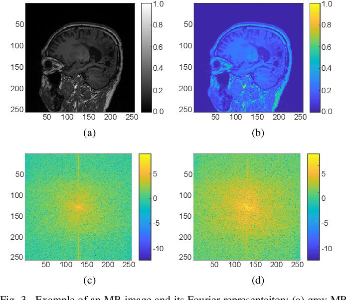 Figure 3 for Deep Learning Guided Undersampling Mask Design for MR Image Reconstruction