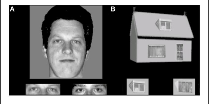 Warringtons facial recognition memory test