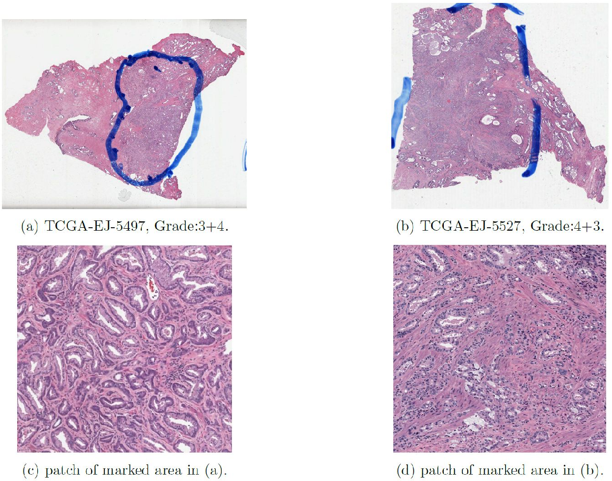 Figure 1 for Large scale digital prostate pathology image analysis combining feature extraction and deep neural network